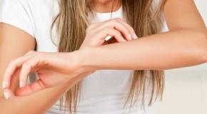 11 Tipps bei Neurodermitis
