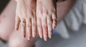 Wespenstiche – eine ständige Gefahr